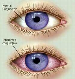 Đau mắt đỏ